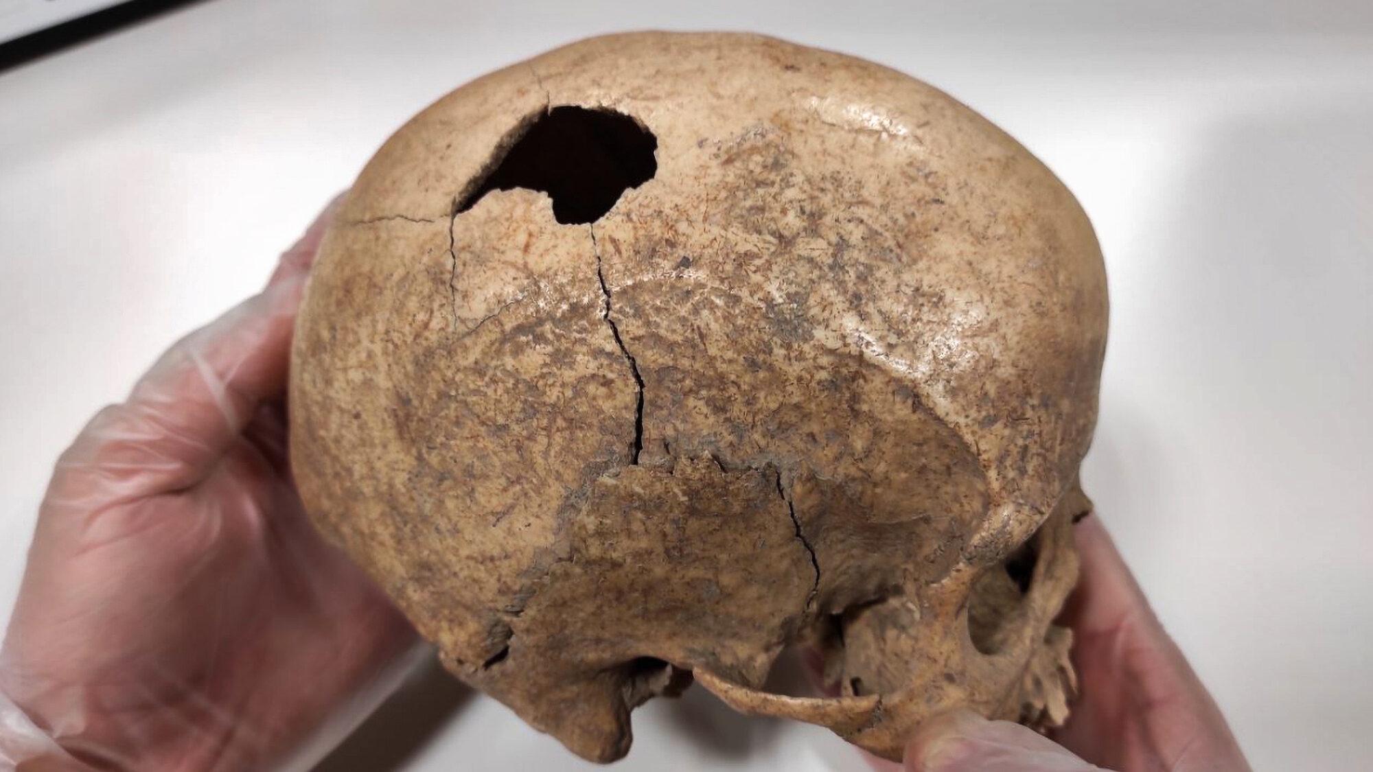 CSI Stone Age: Scientists Crack 5,000-Year-Old Murder Case