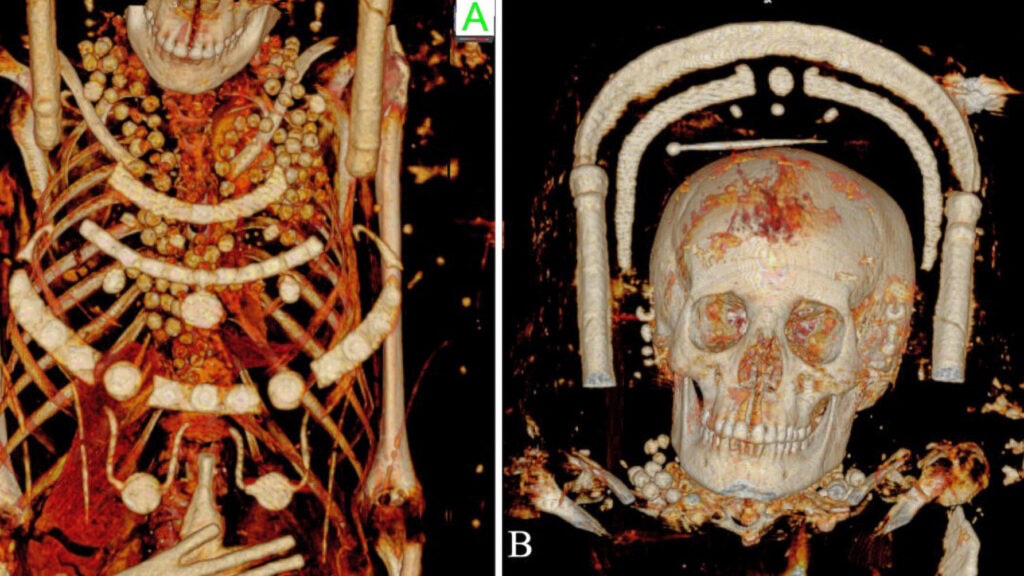 Secrets of the Afterlife: CT Scans Unearth New Findings About Egyptian Mummies