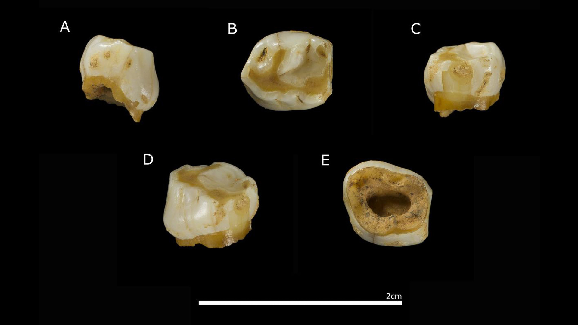 Tooth Hairy: Eight-year-old Cave Girl's Milk Tooth Reveals The Secrets Of The Neanderthals