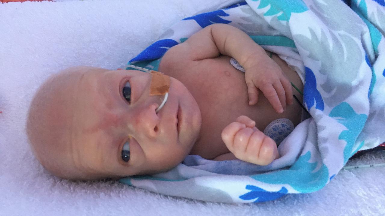 Paracetamol Promising For Premature Babies: Australian Study
