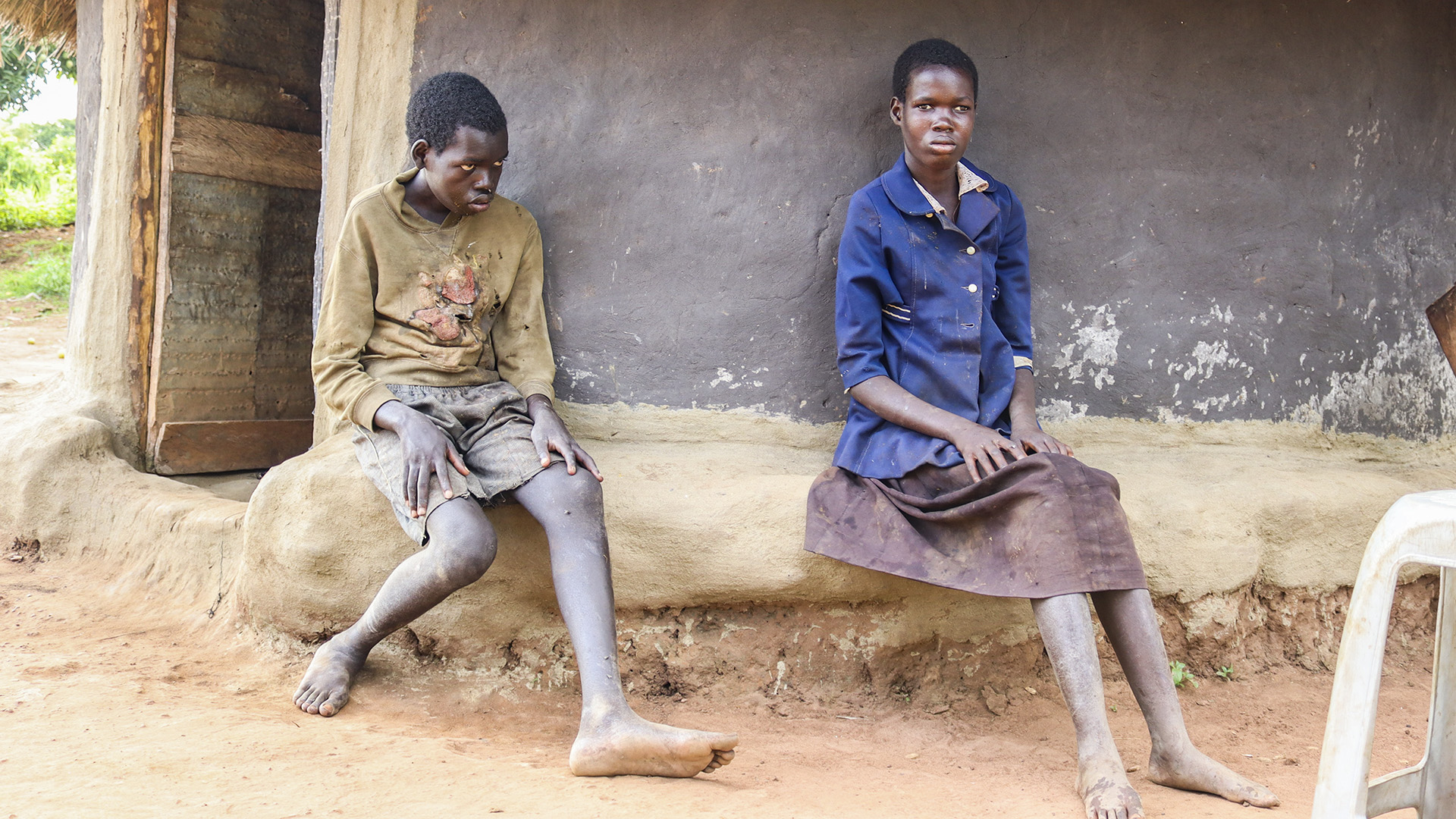 Burden Of Caring For Nodding Syndrome Patients Take Toll On Families In Northern Uganda