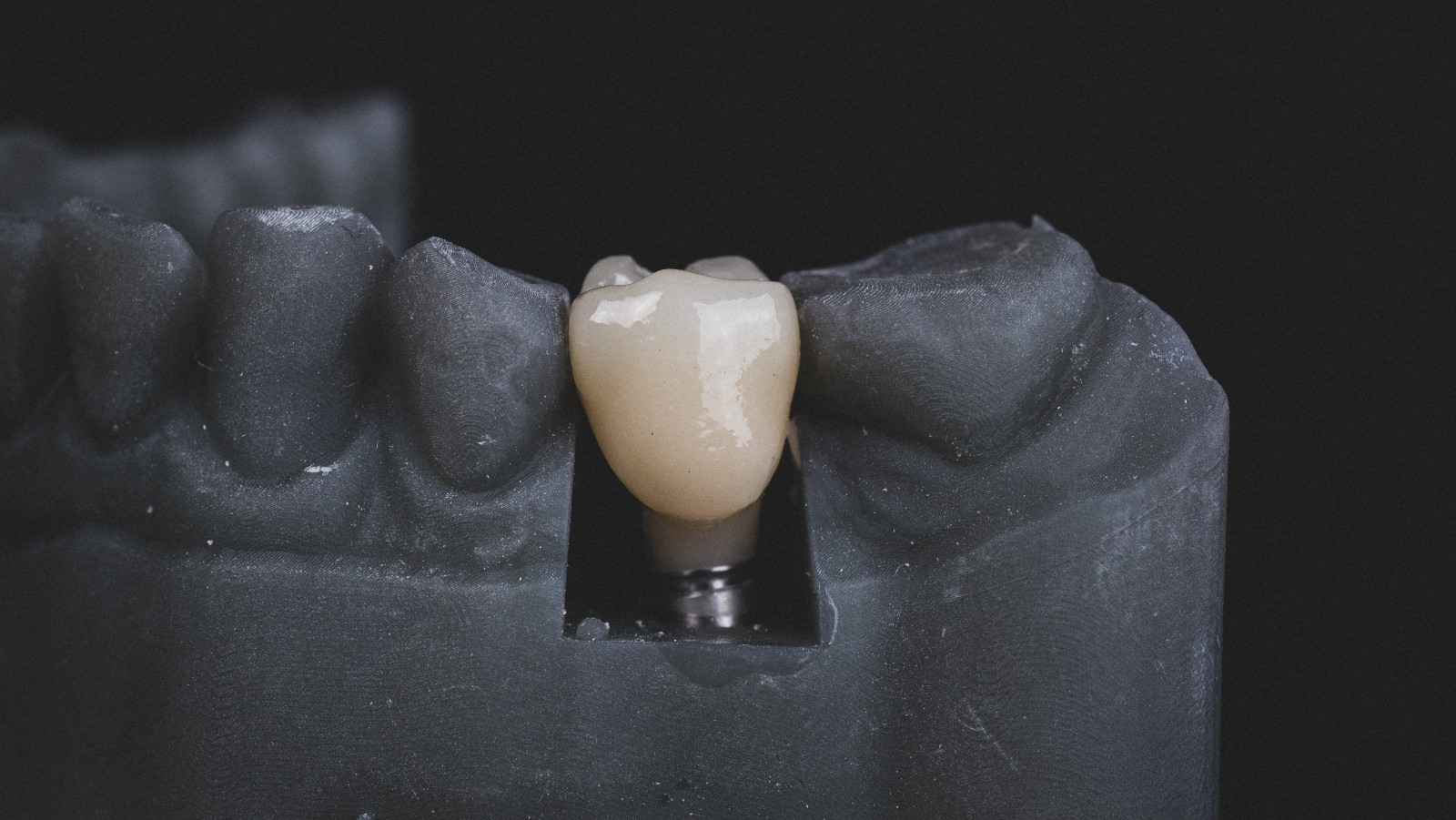 New Way To Avoid Rejection Of Oral, Orthopedic Implants