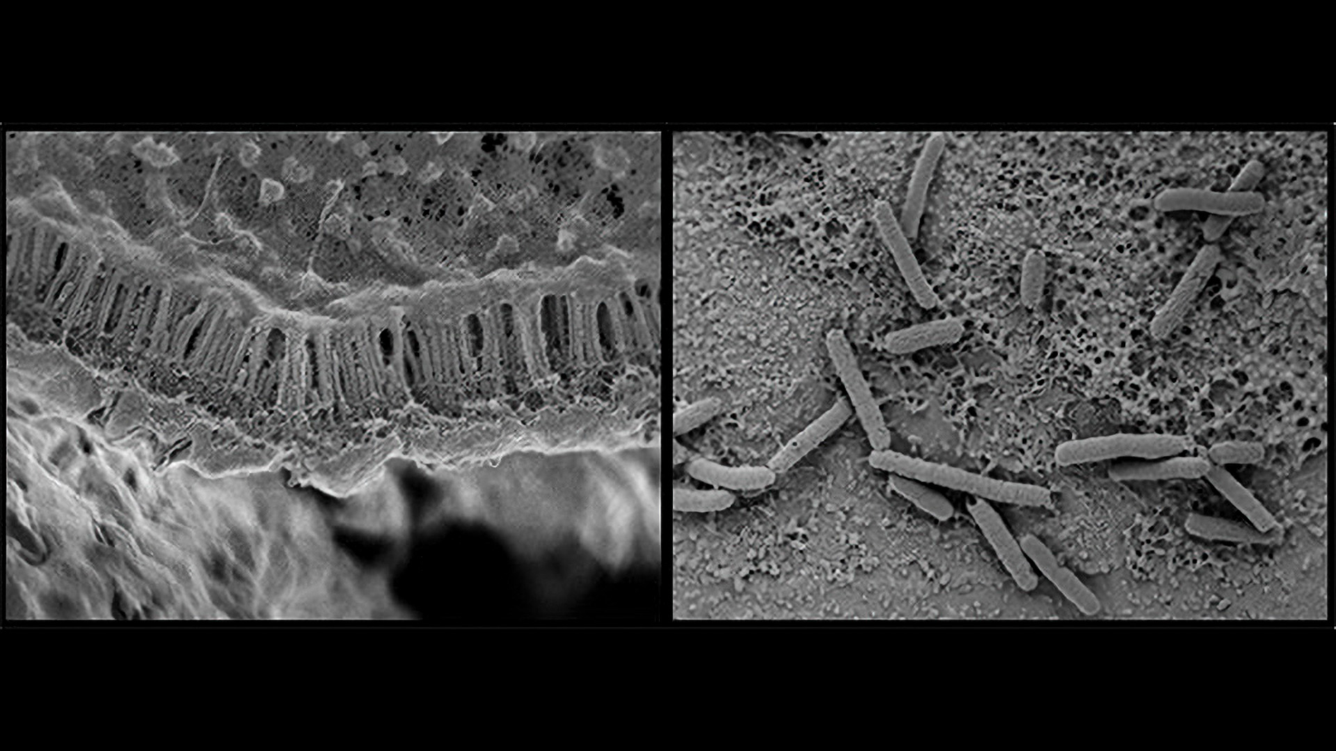 Microbiome Bacteria Adapt To Humans Through Transmission: Study