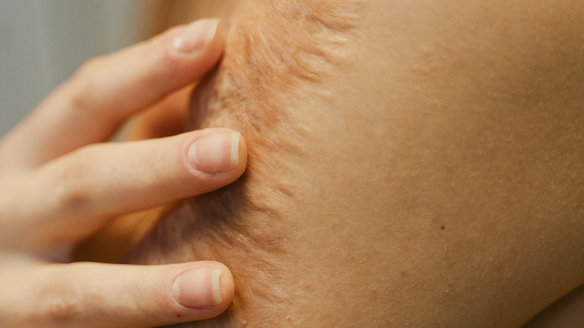 Studies Reveal Light Therapy May Accelerate Healing Of Burns