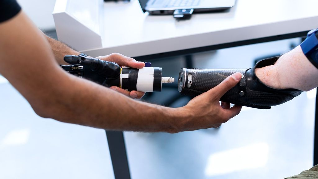 Magnets Could Offer Better Control Of Prosthetic Limbs: Study