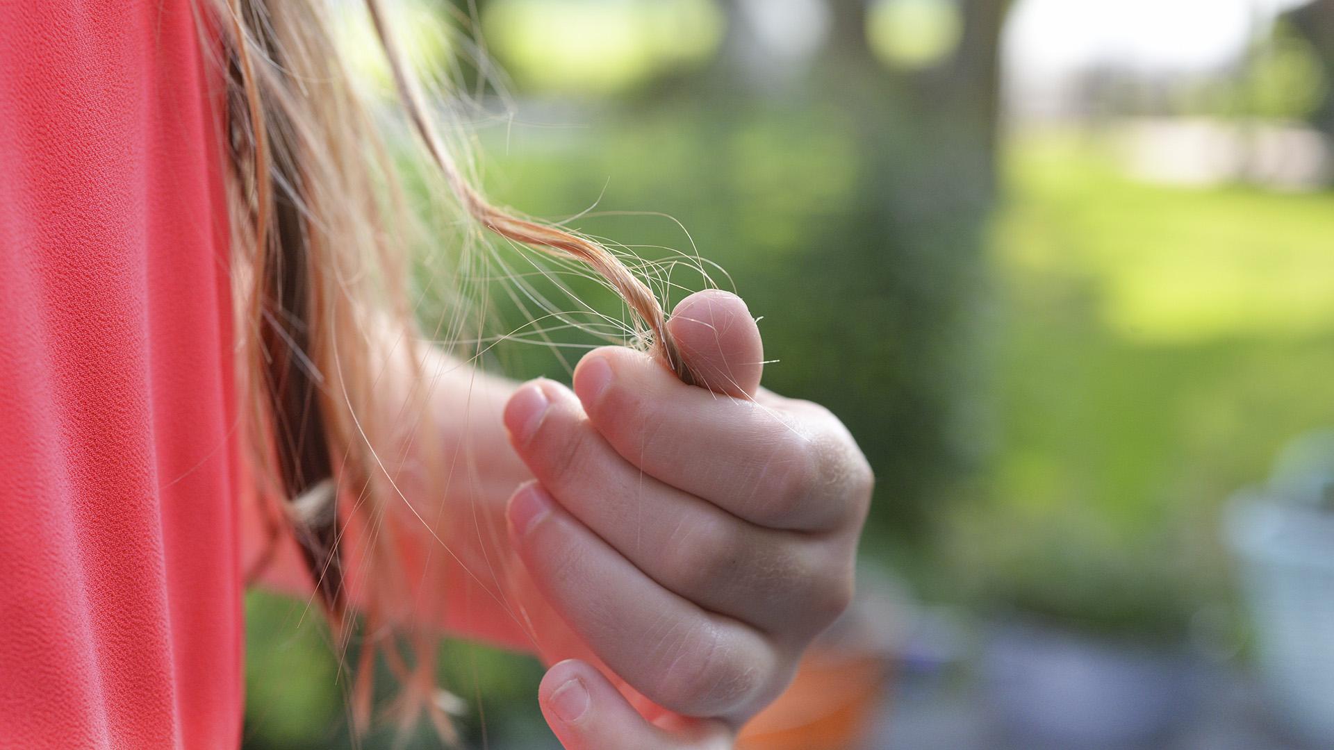 Hair Raising: The Bald Truth About COVID Hair Loss
