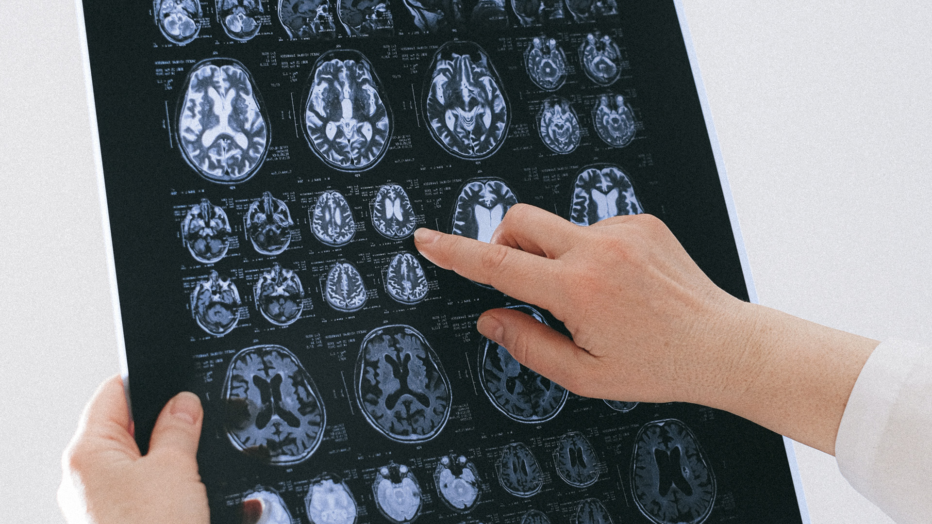 Researchers Find Promising Results For Parkinson's Disease Treatment