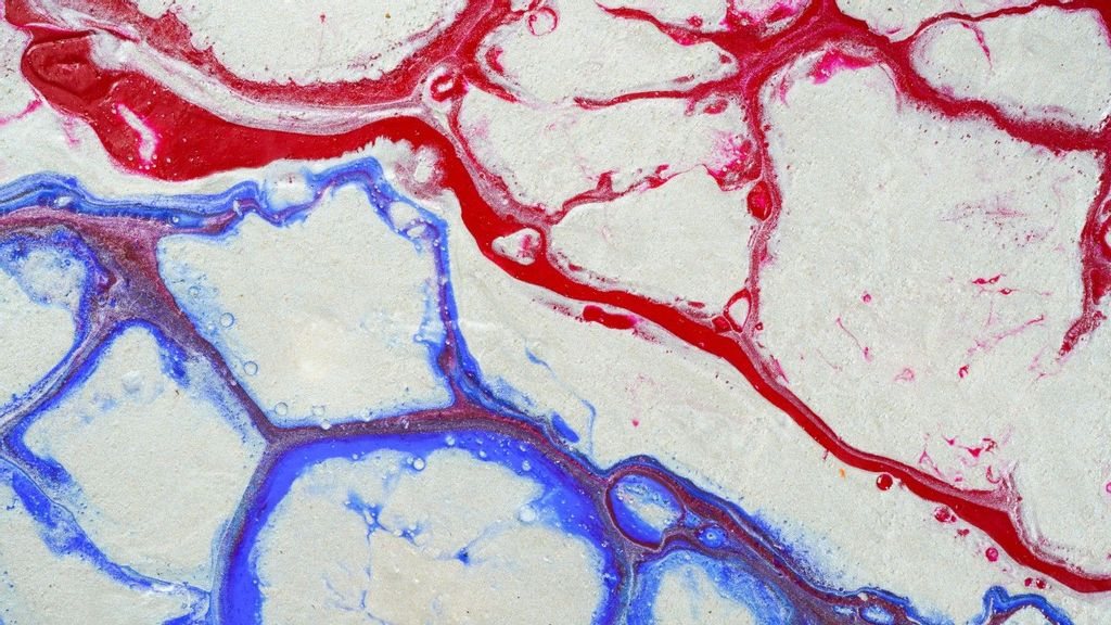 Bio-Printed Blood Vessels Now Possible For Body Implants